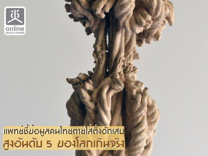 แพทย์ชี้ข้อมูลคนไทยตายไส้ติ่งอักเสบสูงอันดับ 5 ของโลกเกินจริง