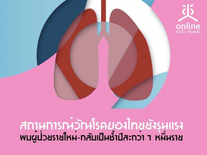 สถานการณ์วัณโรคของไทยยังรุนแรง พบผู้ป่วยรายใหม่-กลับเป็นซ้ำปีละกว่า 7 หมื่นราย